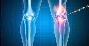 Tratamento da Artrose pela técnica de Viscossuplementação; por Dr. Juliano Almeida