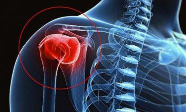 Bursite no ombro, saiba como tratar e prevenir; por Dr. Juliano Almeida